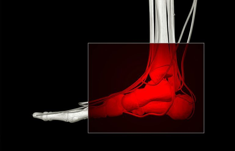 Ankle injuries treated by chiropractic care