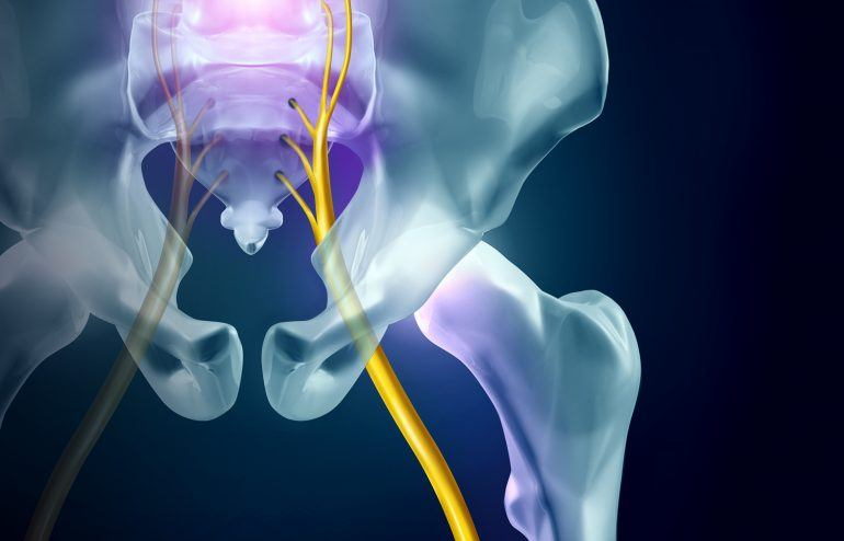 Using ART and Chiropractic care for sciatic nerve pain treatment