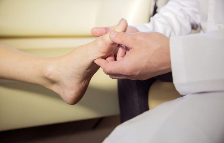 chiropractic for bunion care