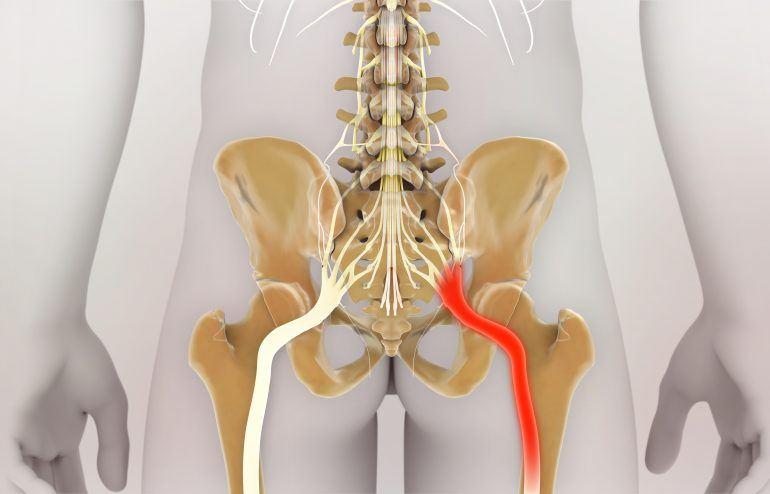 ART for sciatic nerve pain